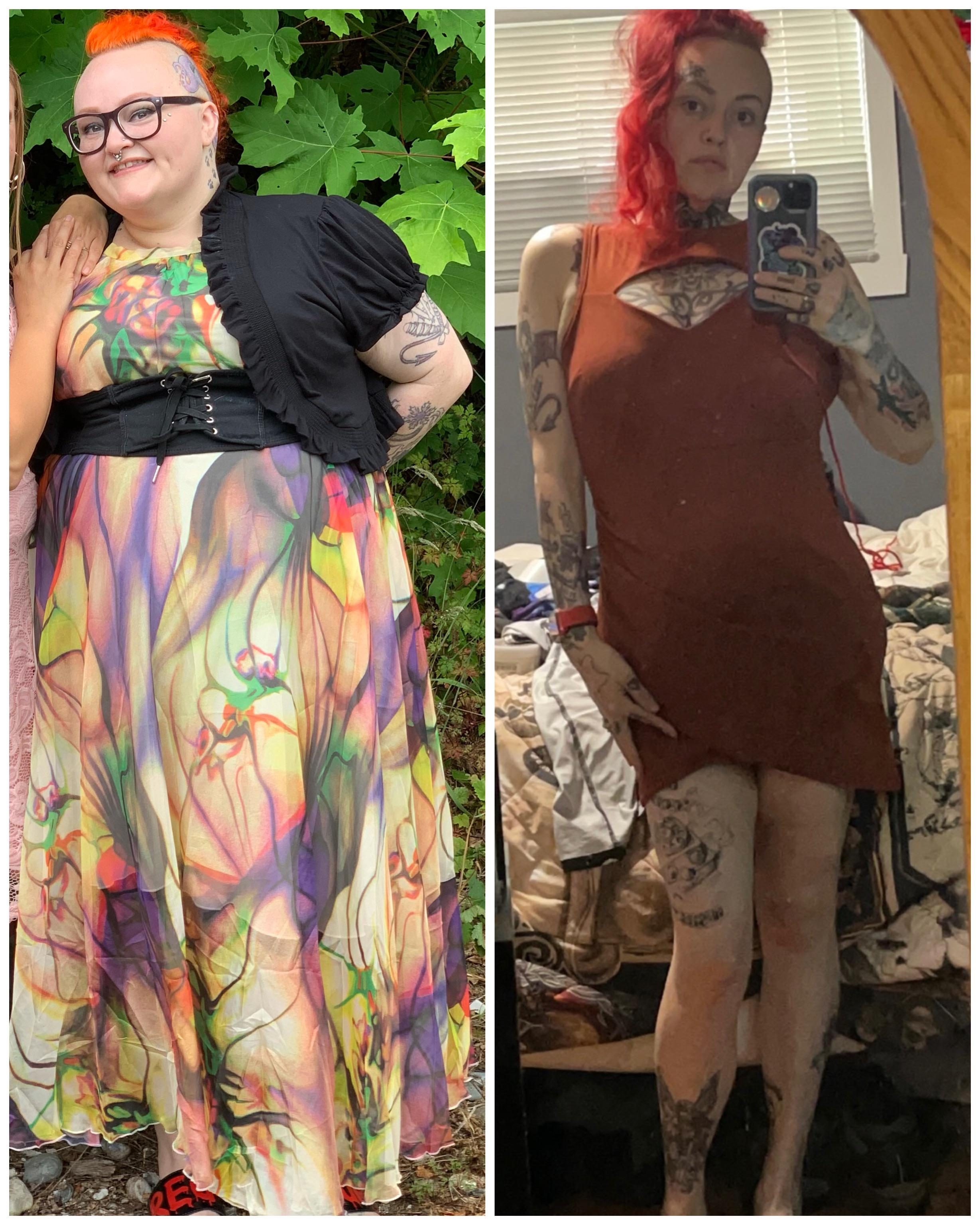 156 lbs Weight Loss Before and After 5'5 Female 312 lbs to 156 lbs