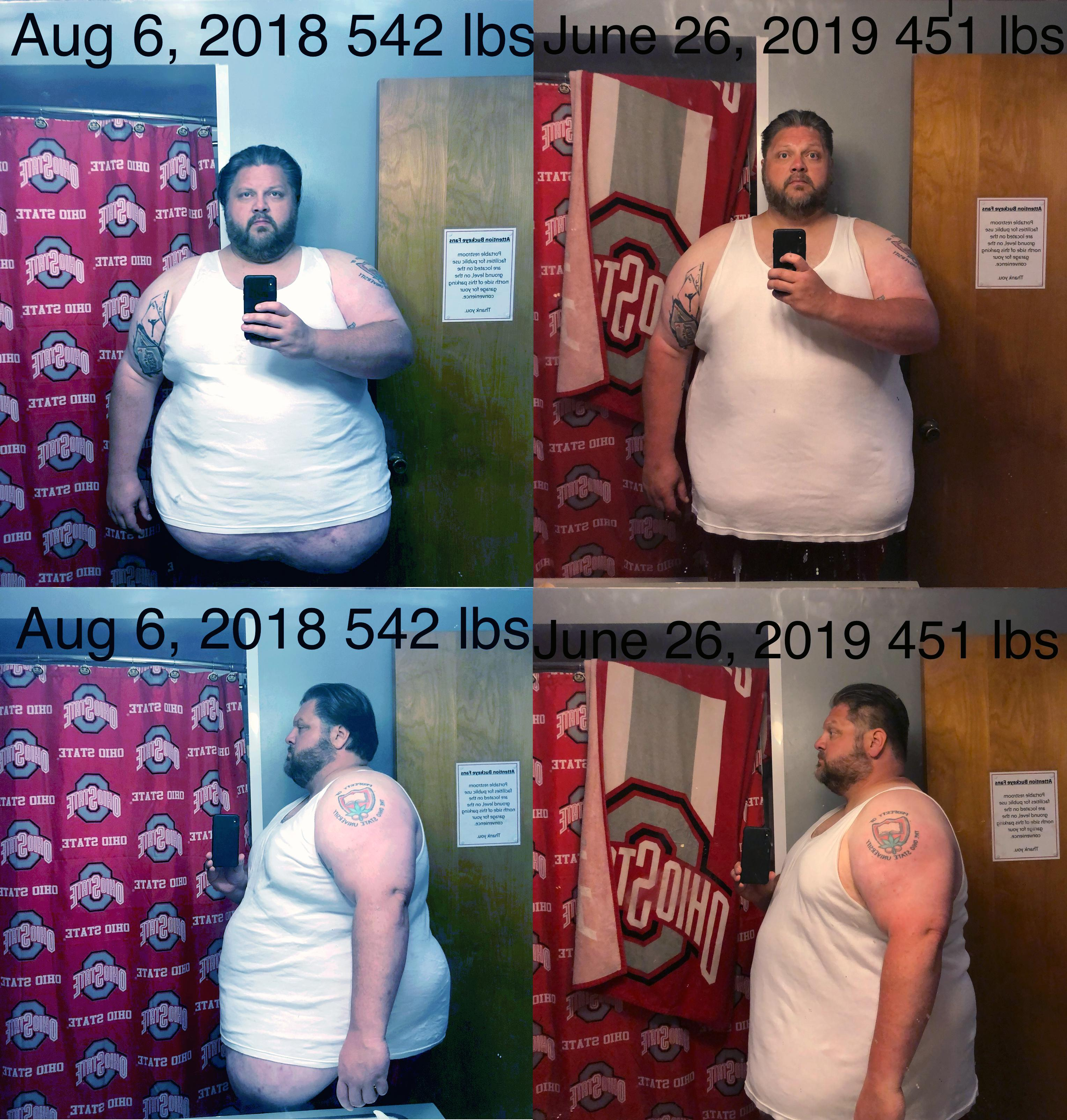 6 foot 1 Male Before and After 91 lbs Fat Loss 542 lbs to 451 lbs