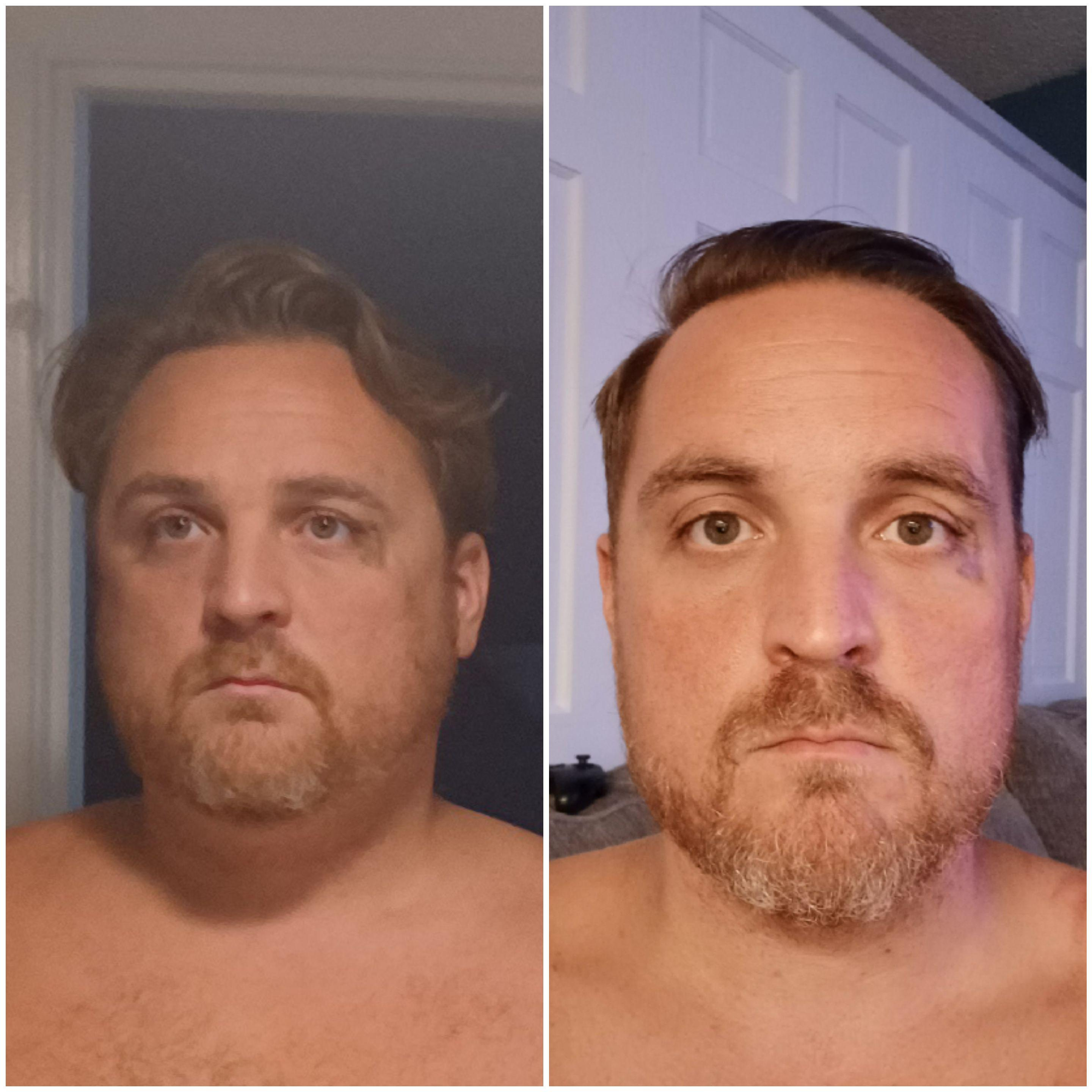 6 foot Male Before and After 29 lbs Weight Loss 265 lbs to 236 lbs