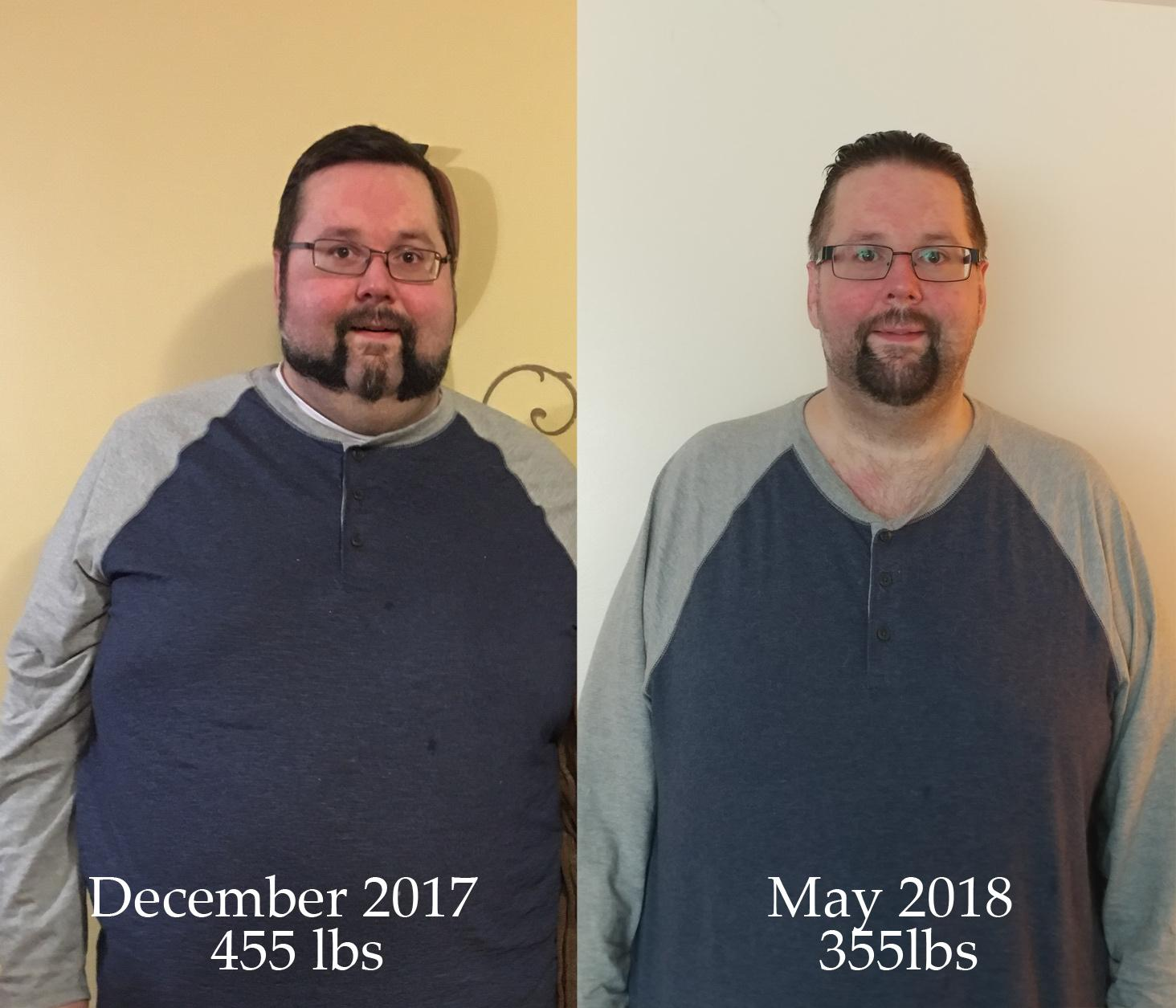 6 feet 3 Male 100 lbs Weight Loss Before and After 455 lbs to 355 lbs