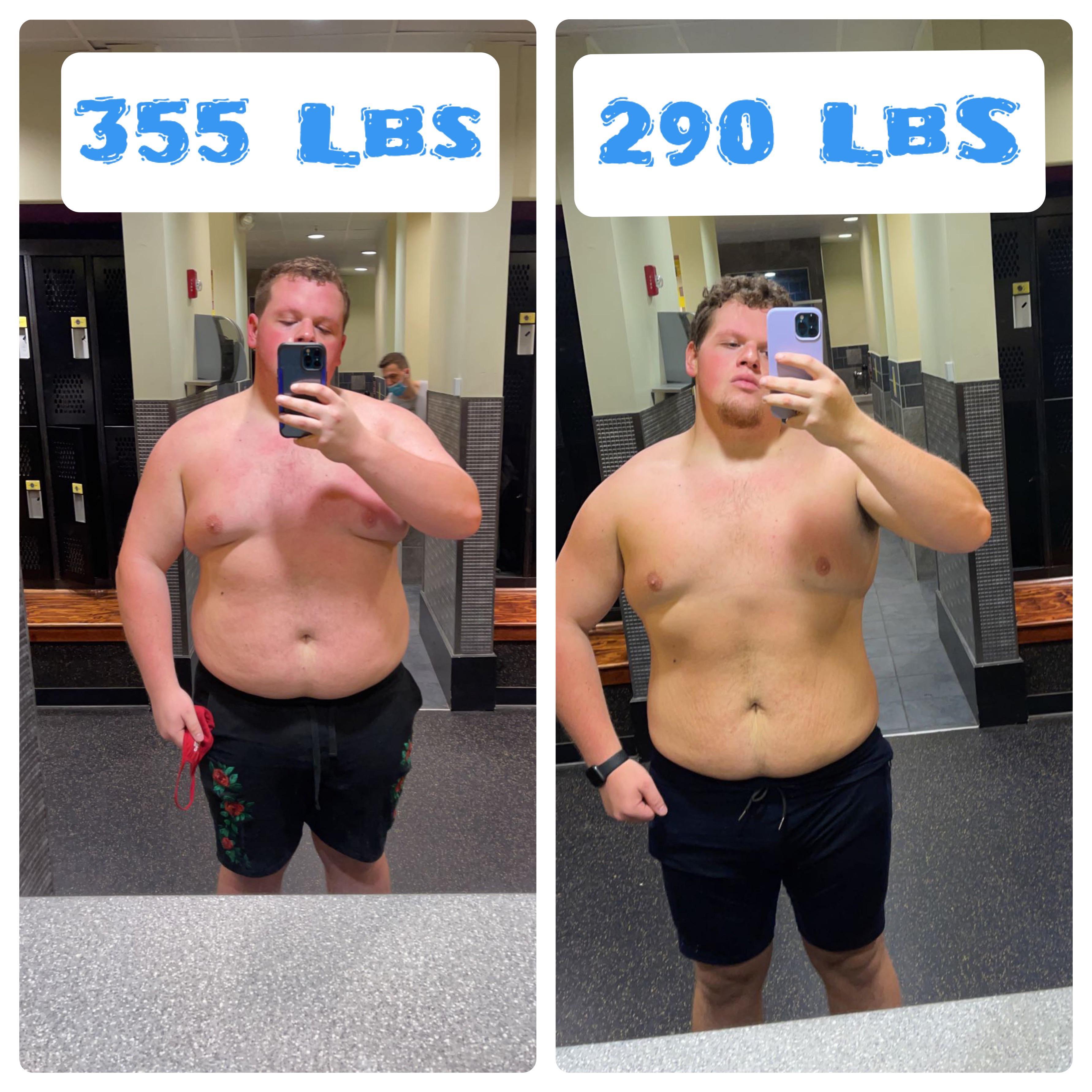 6 feet 2 Male Progress Pics of 65 lbs Fat Loss 355 lbs to 290 lbs