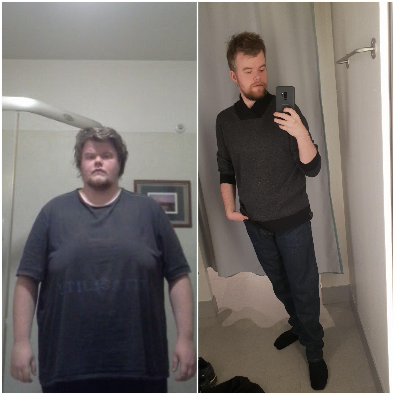 136 lbs Weight Loss 5 feet 10 Male 315 lbs to 179 lbs