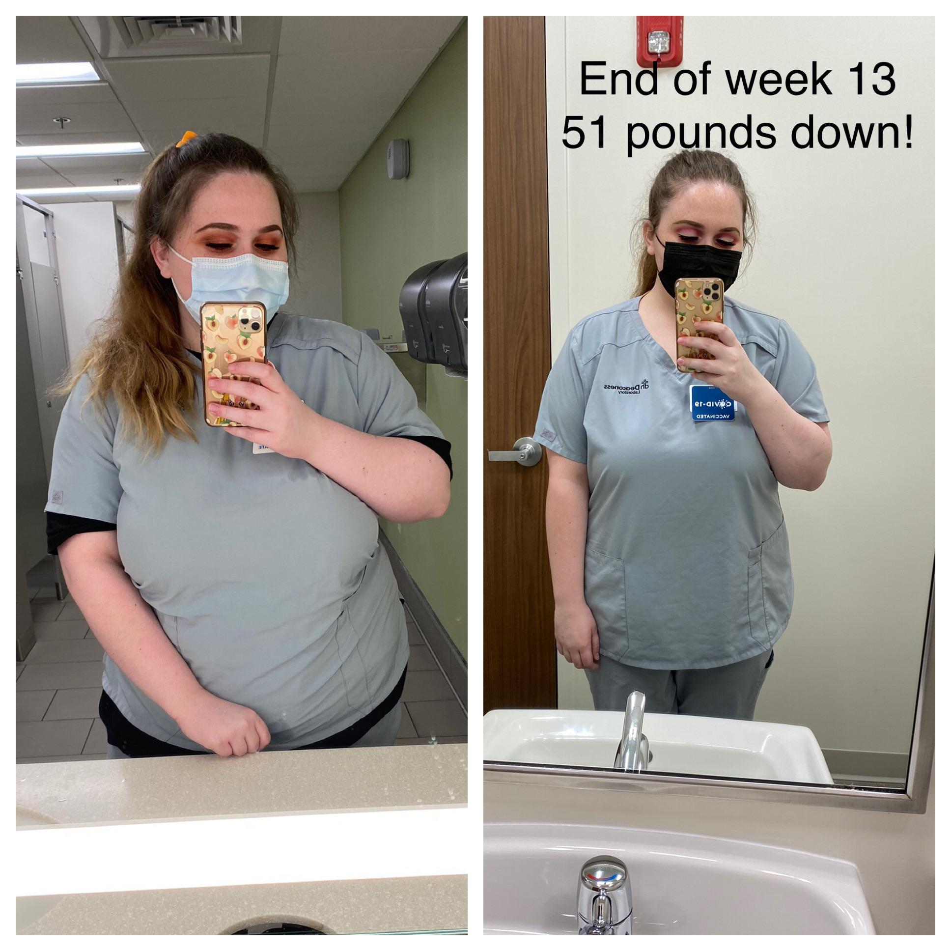 5'7 Female 51 lbs Fat Loss Before and After 286 lbs to 235 lbs