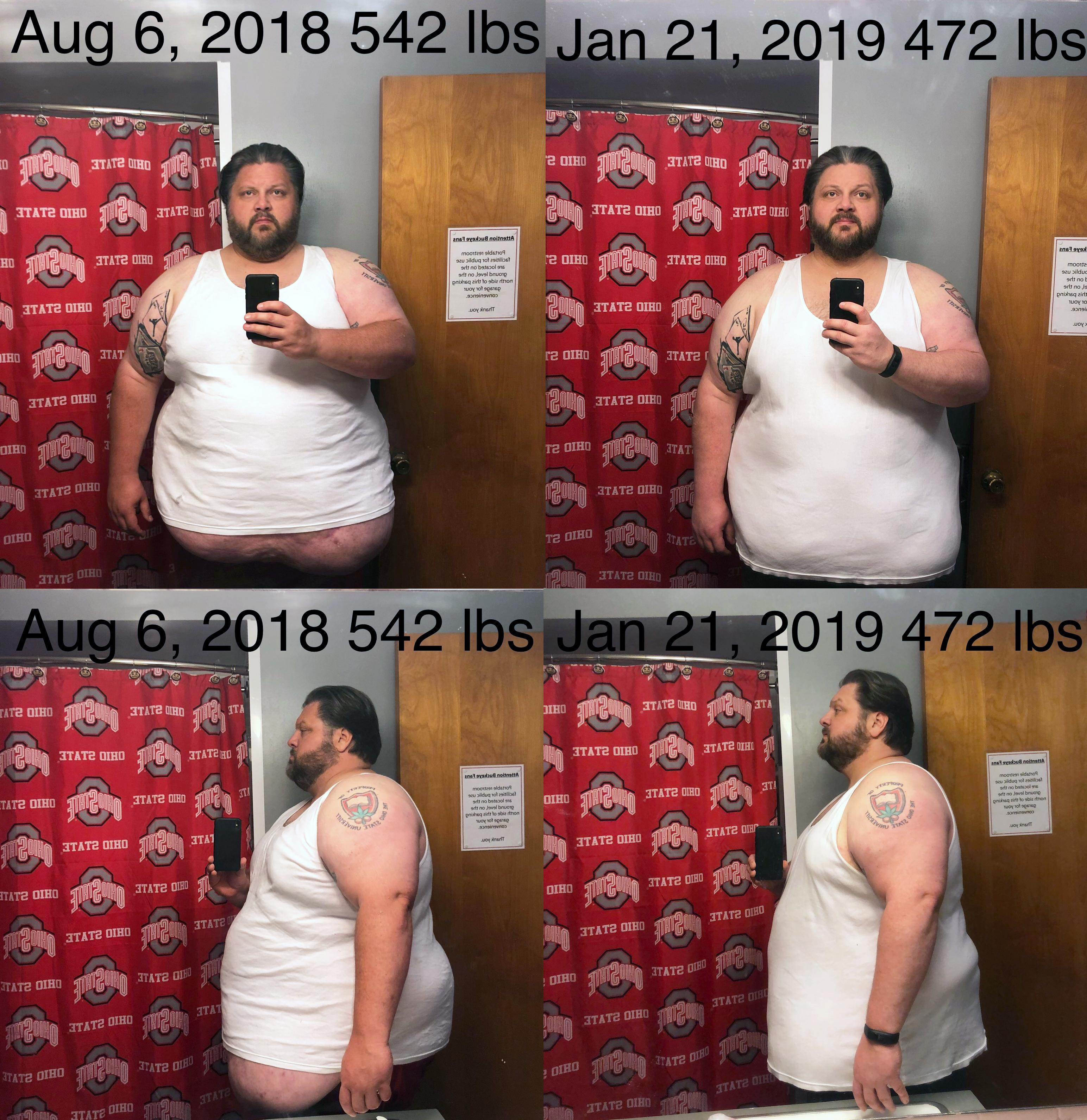 Progress Pics of 70 lbs Fat Loss 6 feet 1 Male 542 lbs to 472 lbs