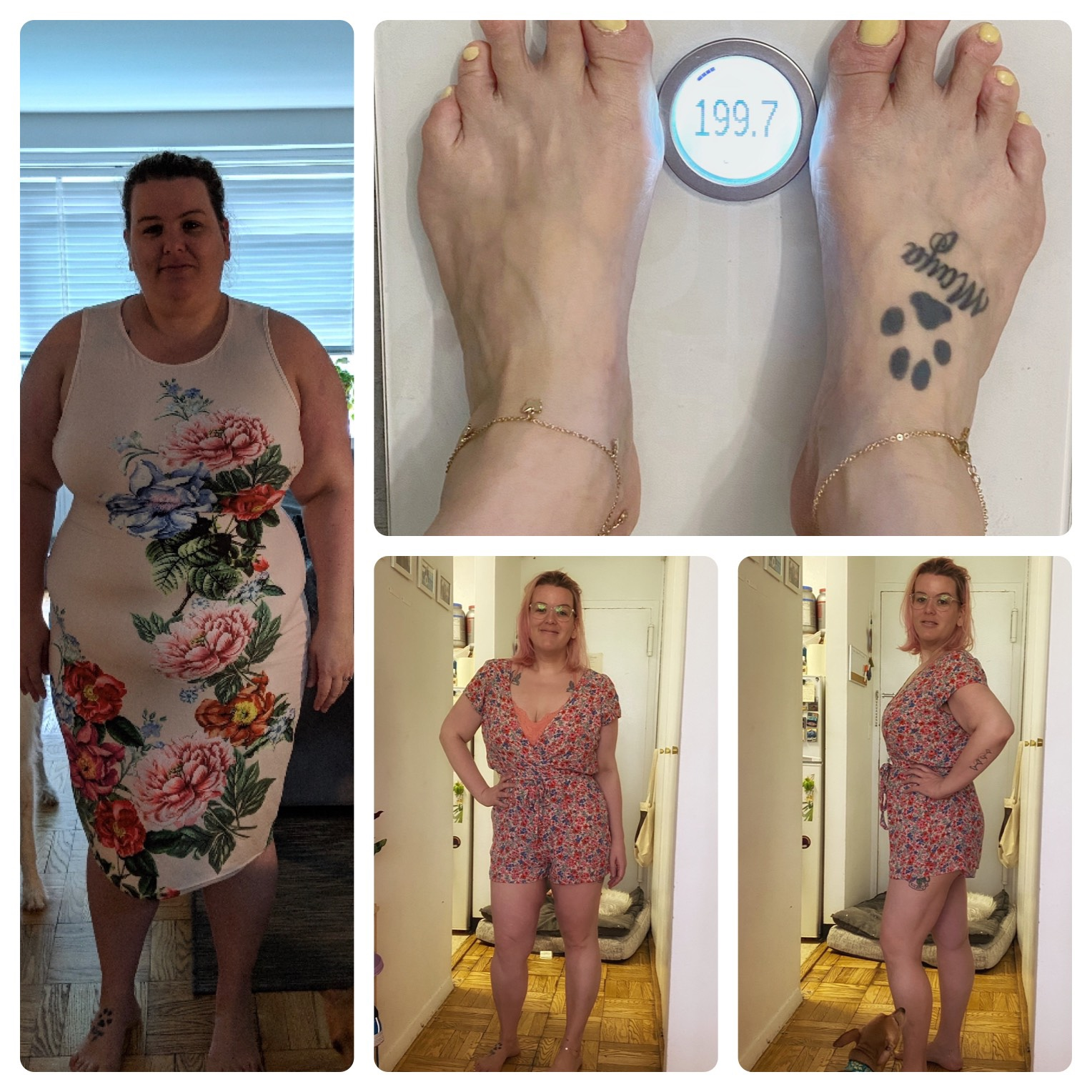 5 feet 8 Female Before and After 116 lbs Fat Loss 315 lbs to 199 lbs