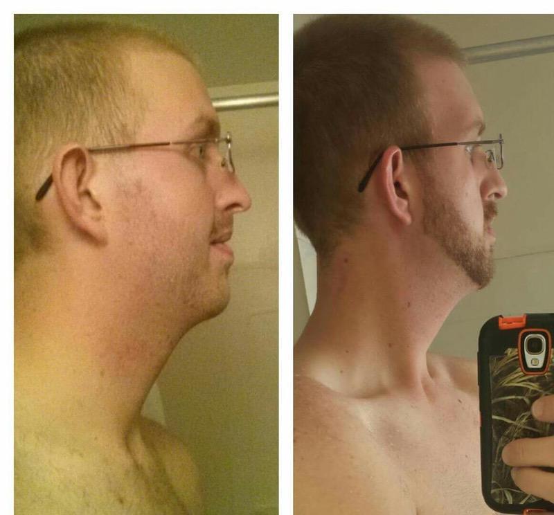 84 lbs Weight Loss 6'7 Male 325 lbs to 241 lbs