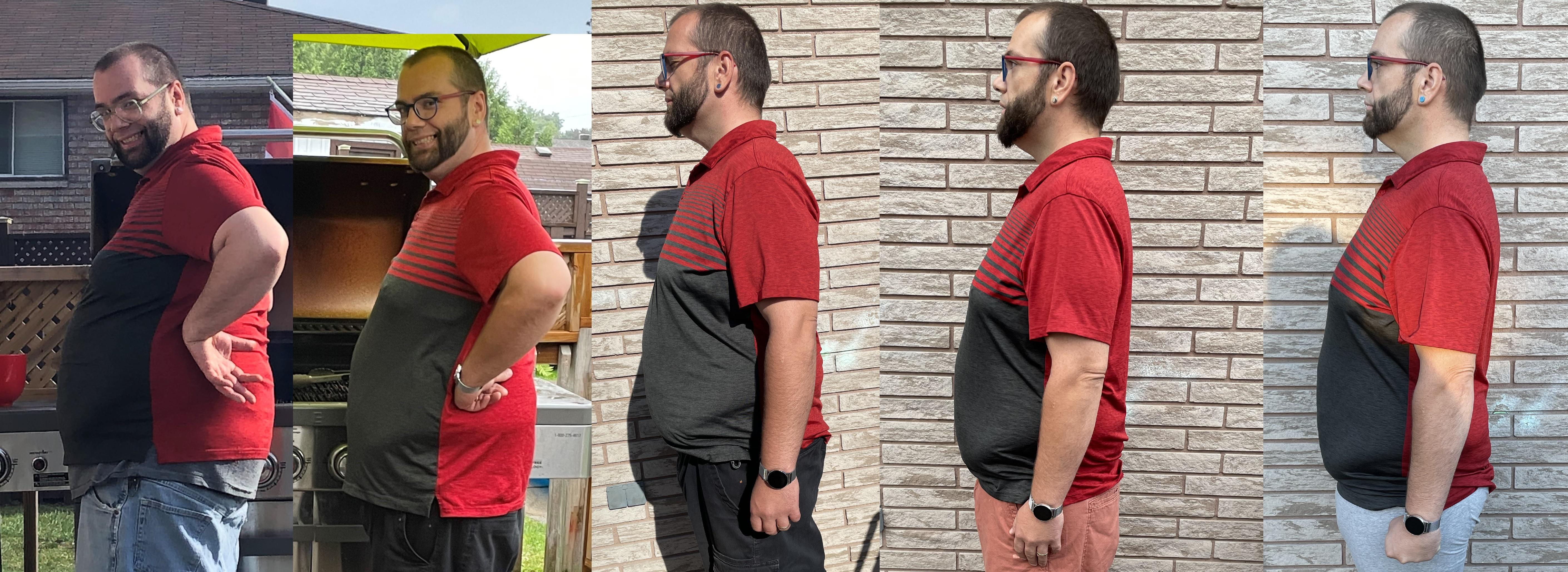 5 foot 10 Male 71 lbs Fat Loss Before and After 299 lbs to 228 lbs