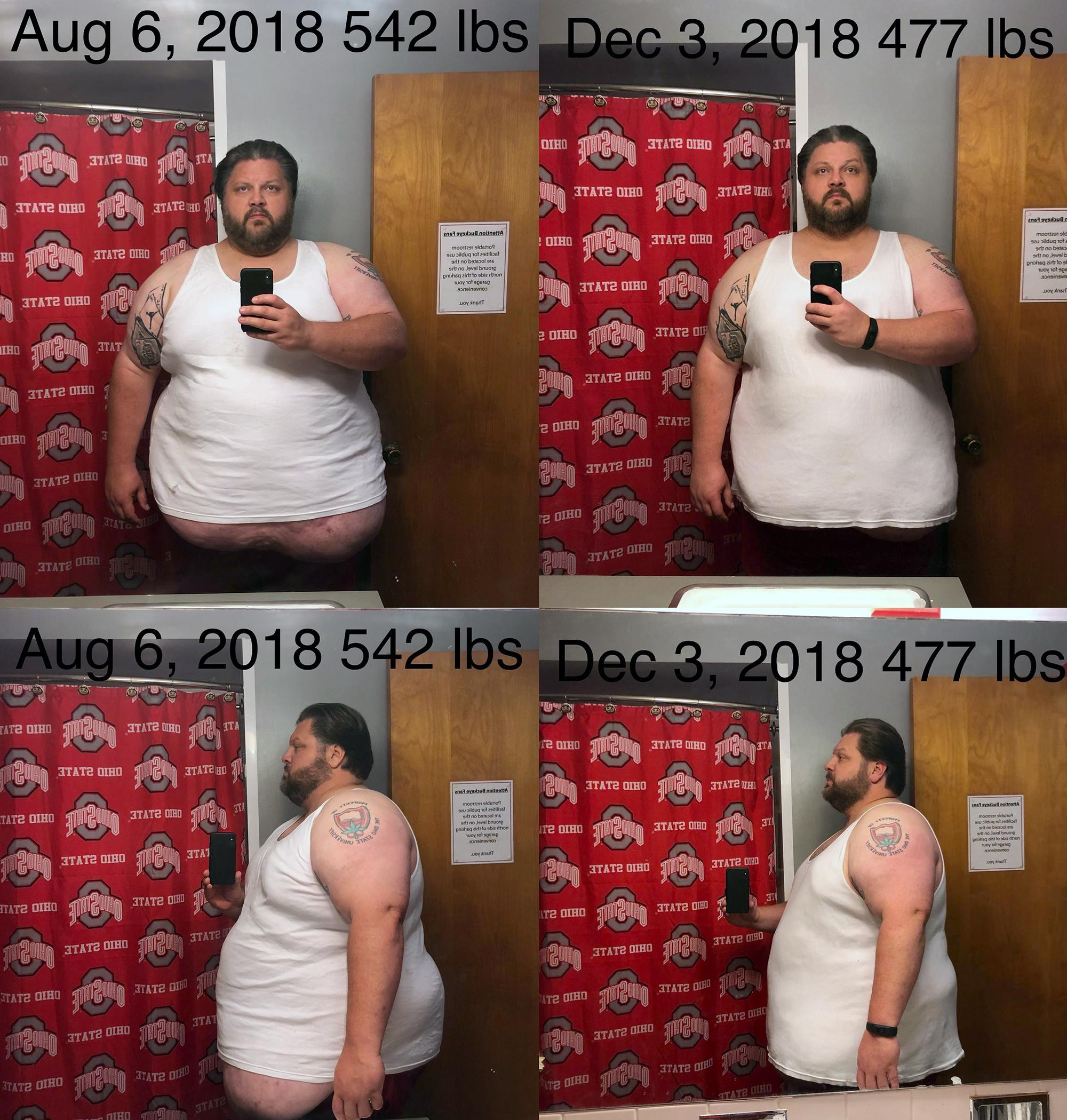 6 foot 1 Male Progress Pics of 65 lbs Weight Loss 542 lbs to 477 lbs