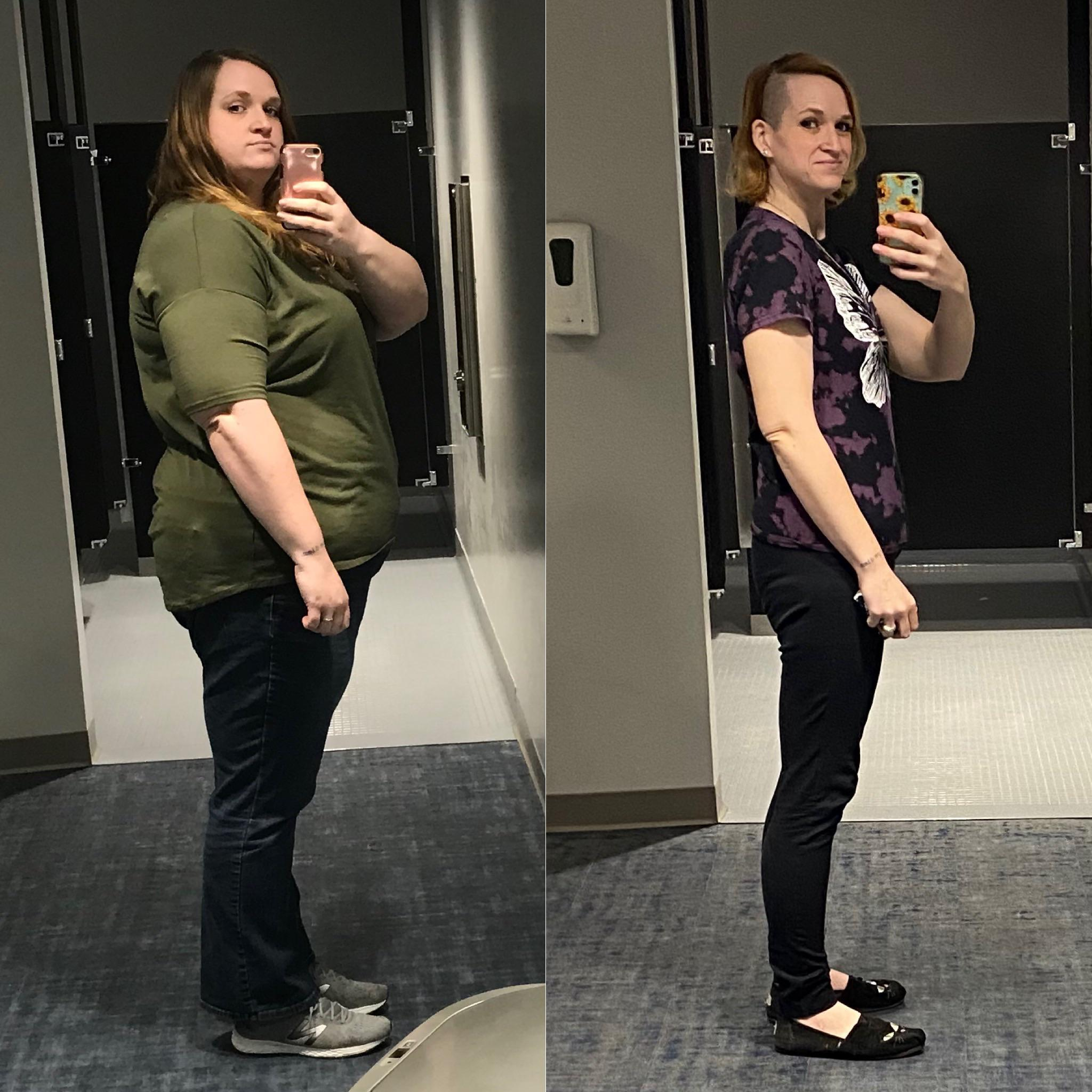 200 lbs Fat Loss Before and After 6 foot Female 370 lbs to 170 lbs