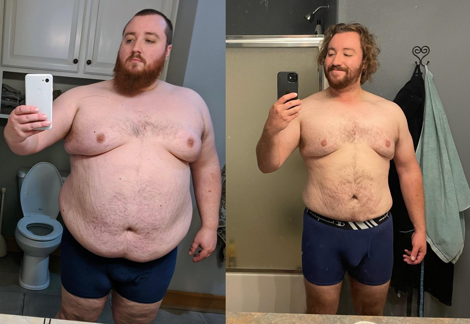 6 foot Male 135 lbs Fat Loss Before and After 370 lbs to 235 lbs