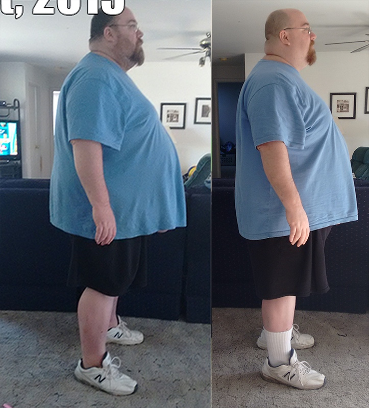 Before and After 87 lbs Weight Loss 5 feet 10 Male 499 lbs to 412 lbs