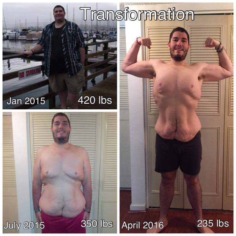 185 lbs Weight Loss Before and After 6 foot Male 420 lbs to 235 lbs
