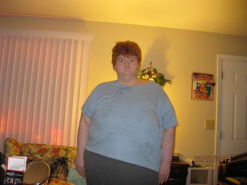 Progress Pics of 67 lbs Weight Loss 5'5 Female 450 lbs to 383 lbs