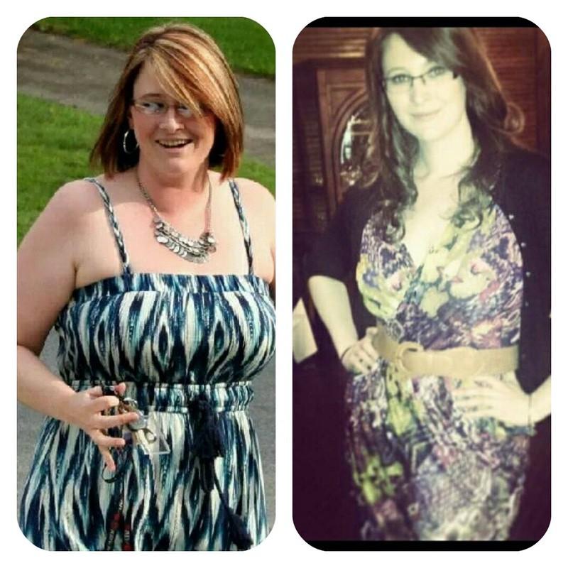 5'9 Female 41 lbs Weight Loss 205 lbs to 164 lbs