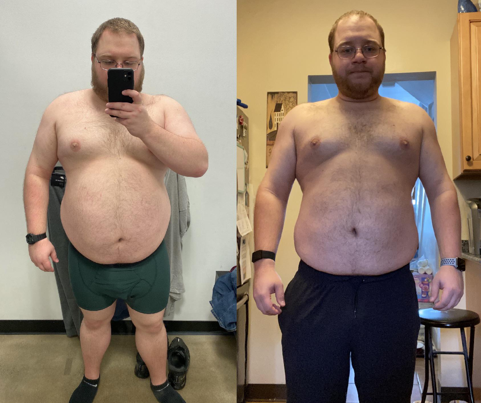 5'9 Male 60 lbs Weight Loss Before and After 305 lbs to 245 lbs