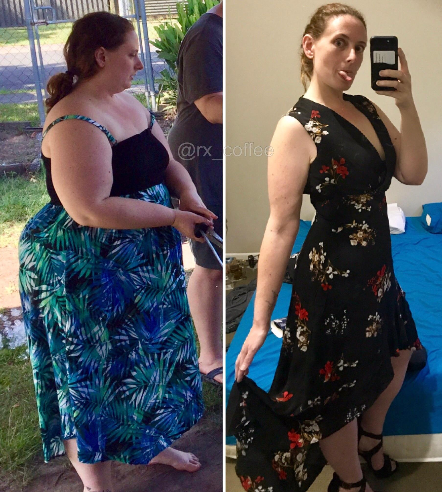 5 feet 9 Female 156 lbs Fat Loss Before and After 320 lbs to 164 lbs
