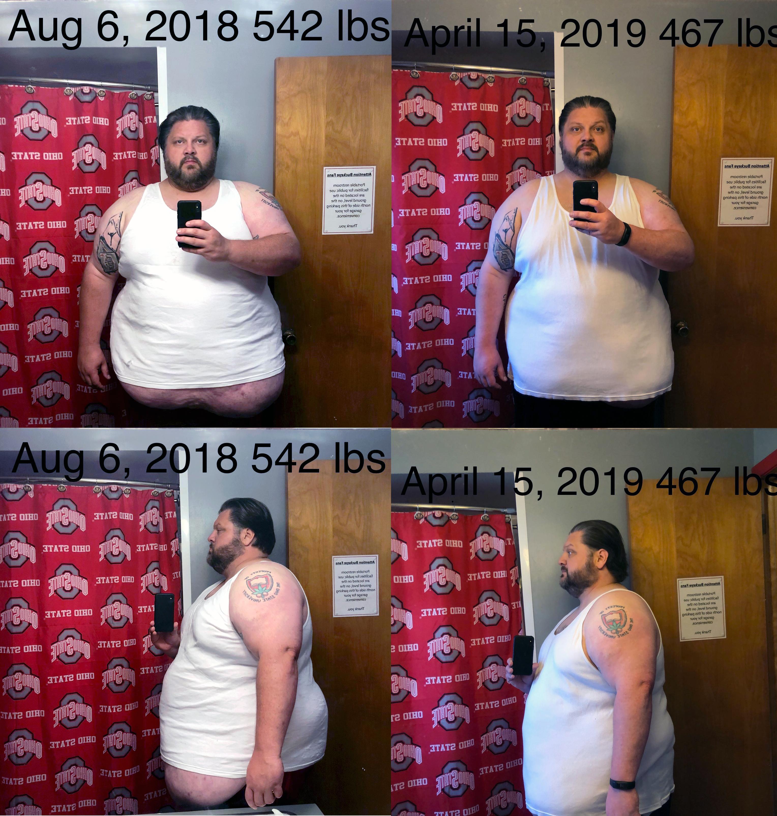 6'1 Male Progress Pics of 75 lbs Weight Loss 542 lbs to 467 lbs