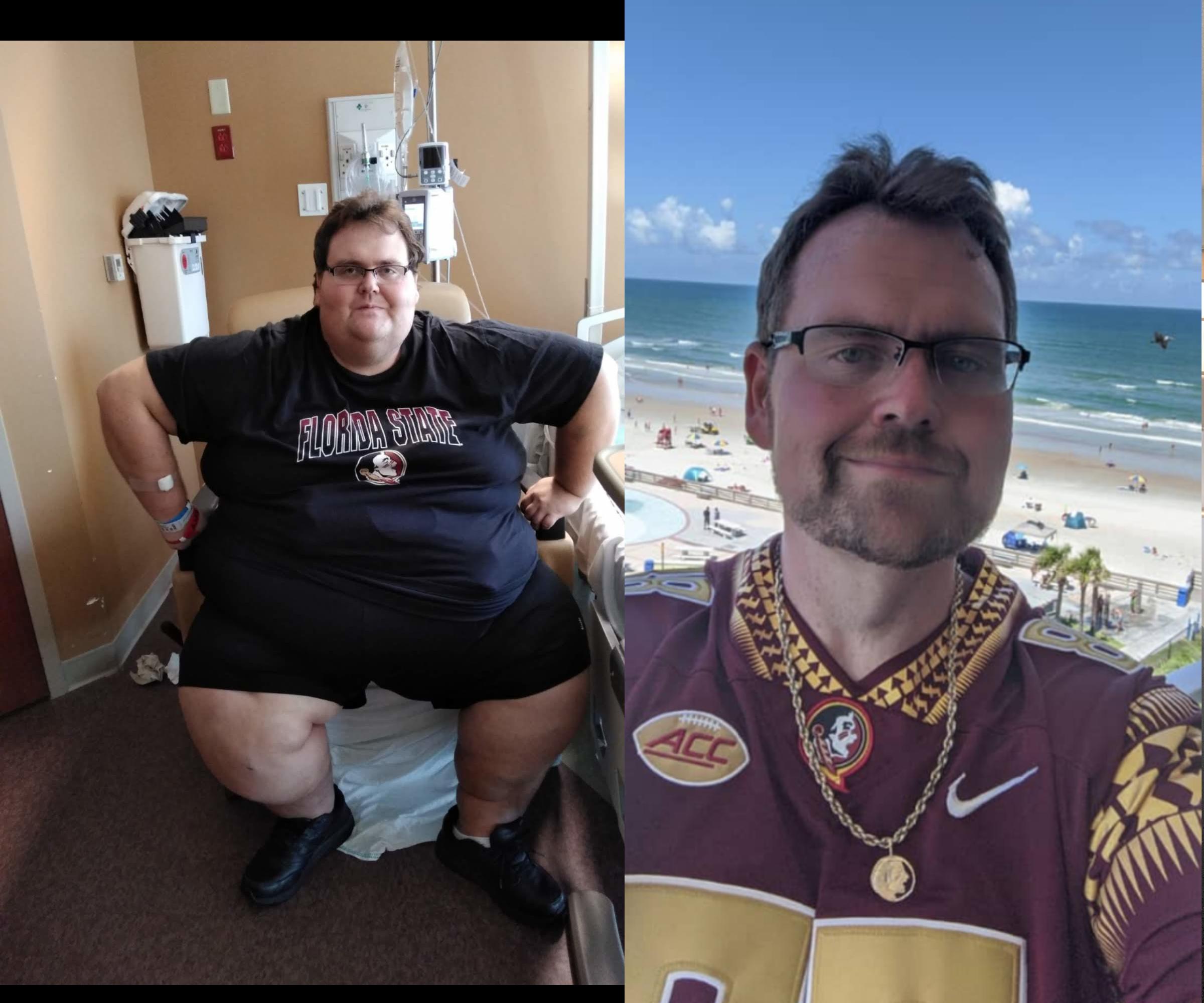 Progress Pics of 342 lbs Fat Loss 6 foot Male 587 lbs to 245 lbs