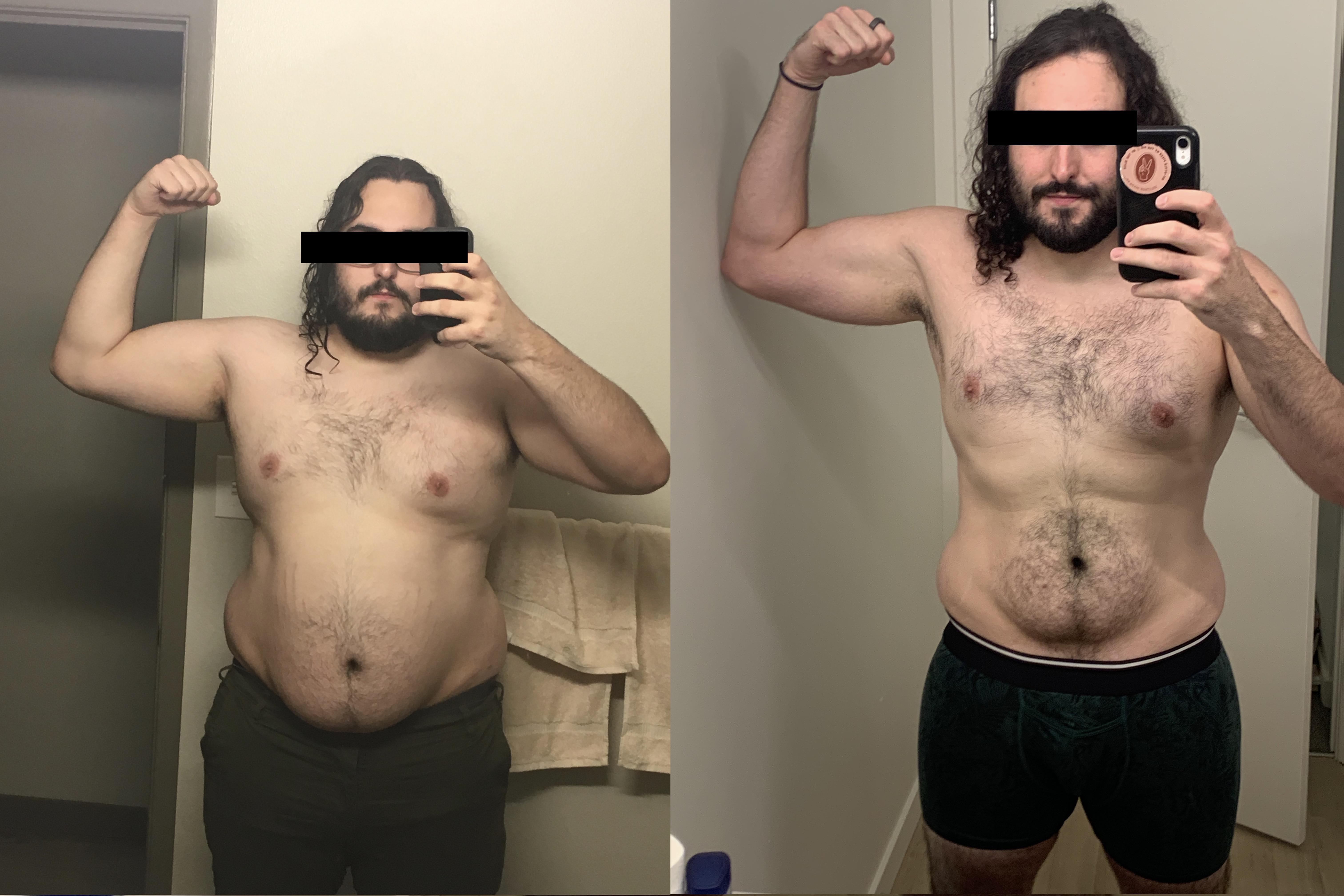6 foot Male 82 lbs Weight Loss 312 lbs to 230 lbs