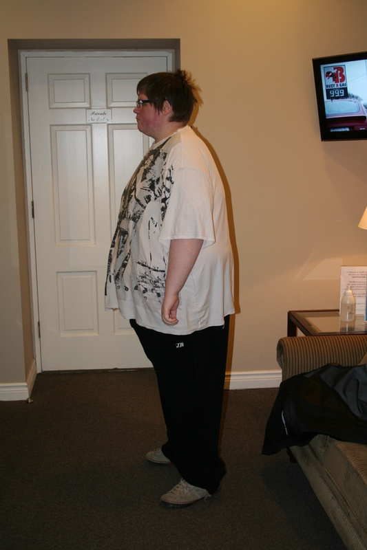 6 feet 3 Male 189 lbs Weight Loss 419 lbs to 230 lbs