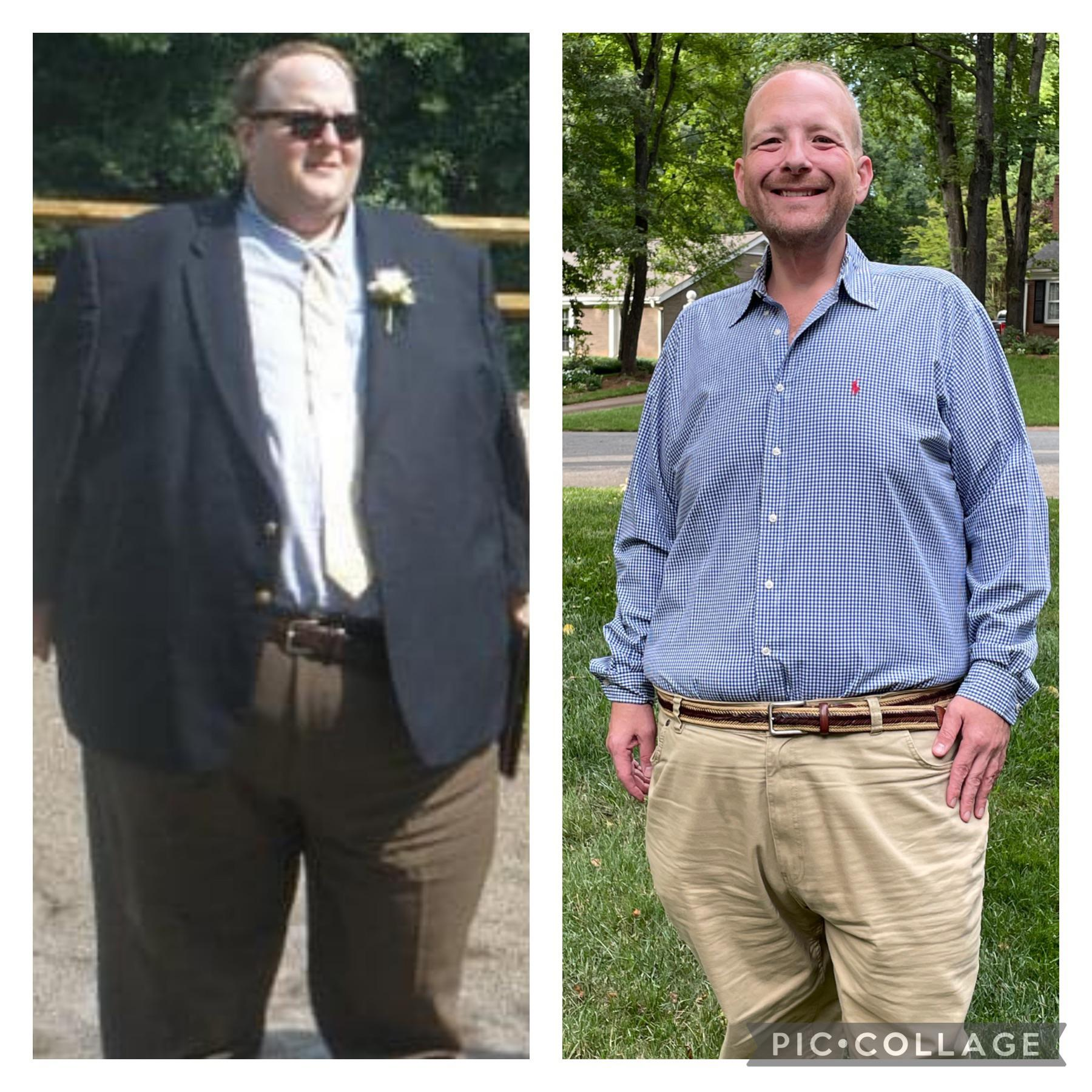 5 foot 11 Male Before and After 335 lbs Fat Loss 610 lbs to 275 lbs