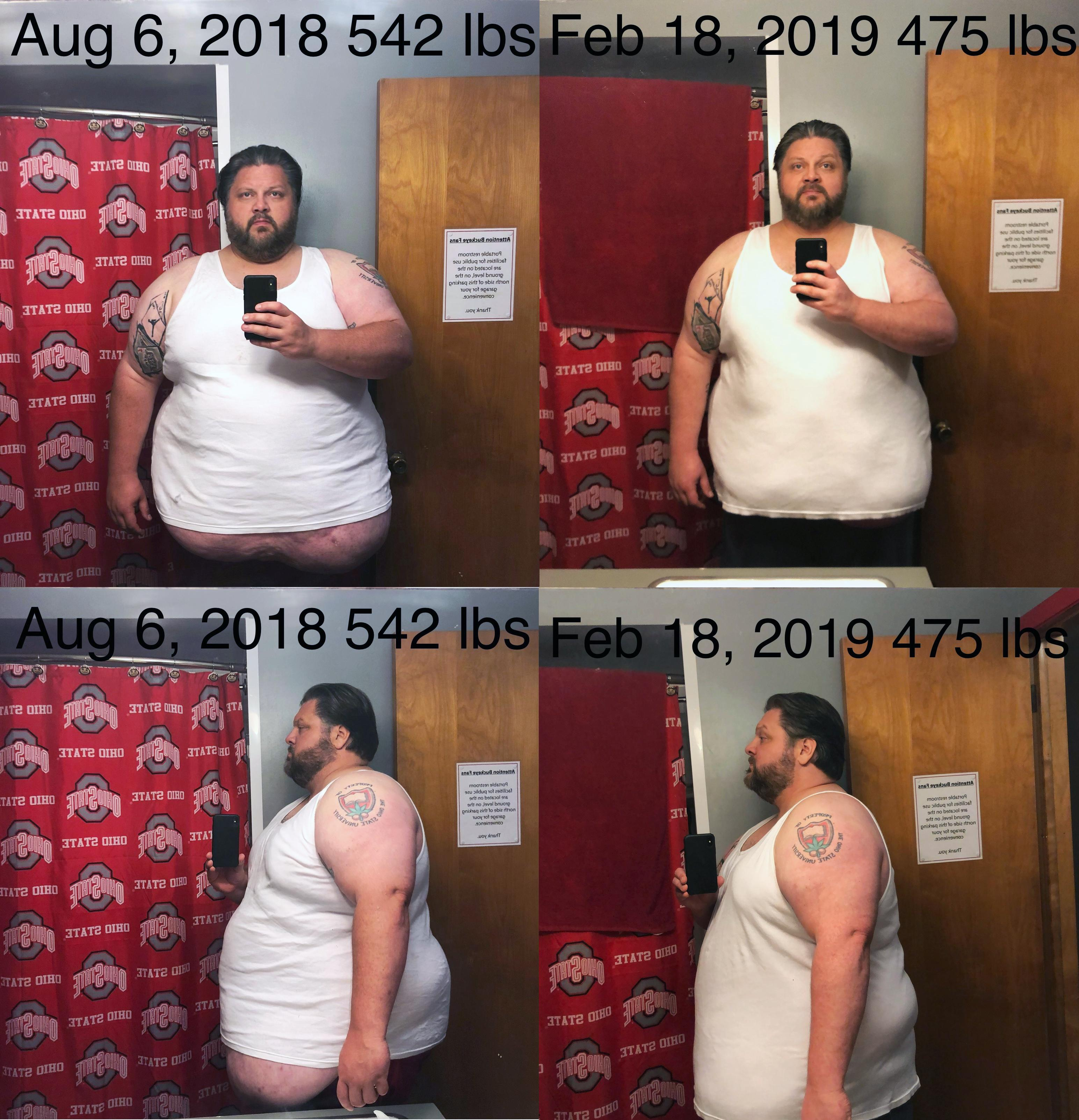 6 feet 1 Male Before and After 67 lbs Fat Loss 542 lbs to 475 lbs