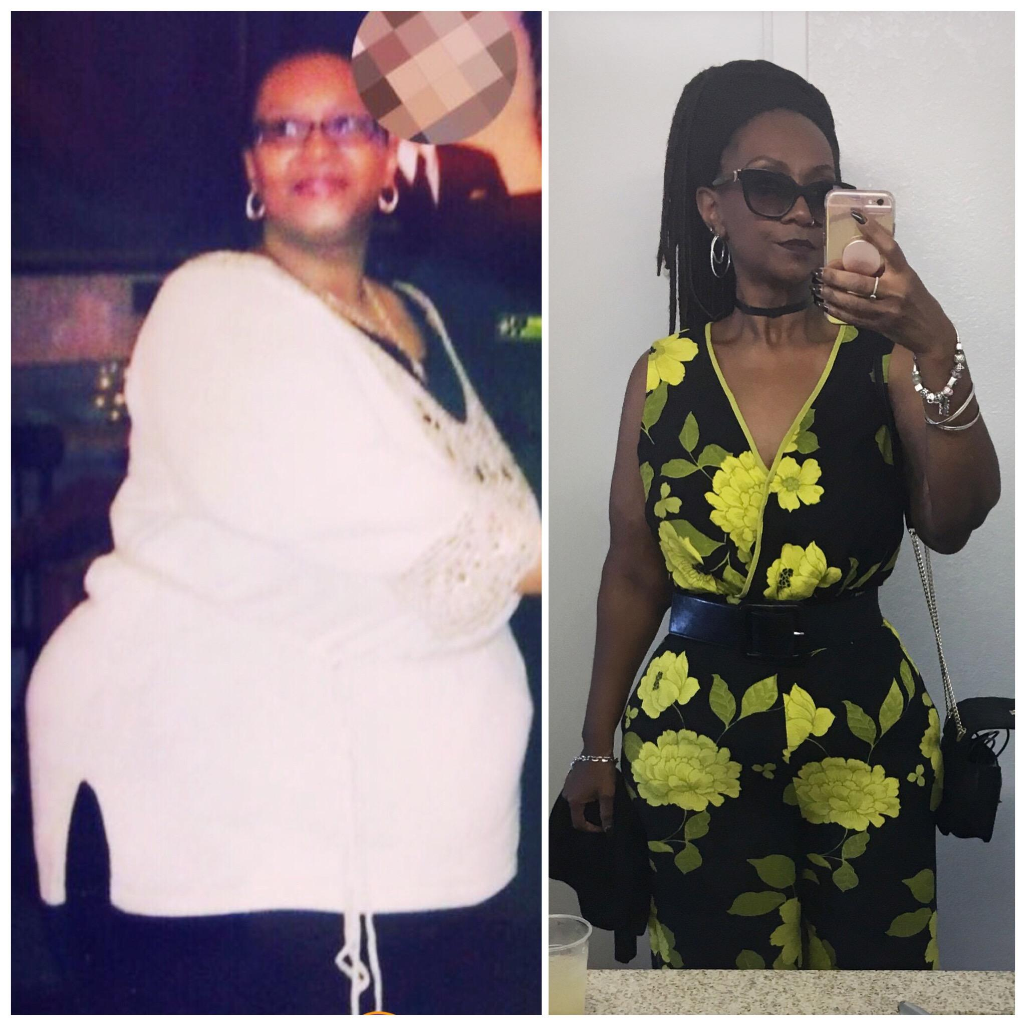Before and After 148 lbs Fat Loss 5 feet 6 Female 326 lbs to 178 lbs