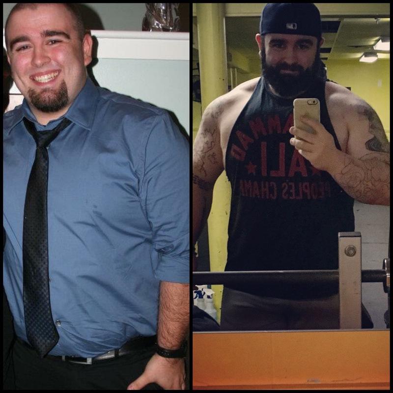 5'10 Male Progress Pics of 110 lbs Weight Loss 340 lbs to 230 lbs
