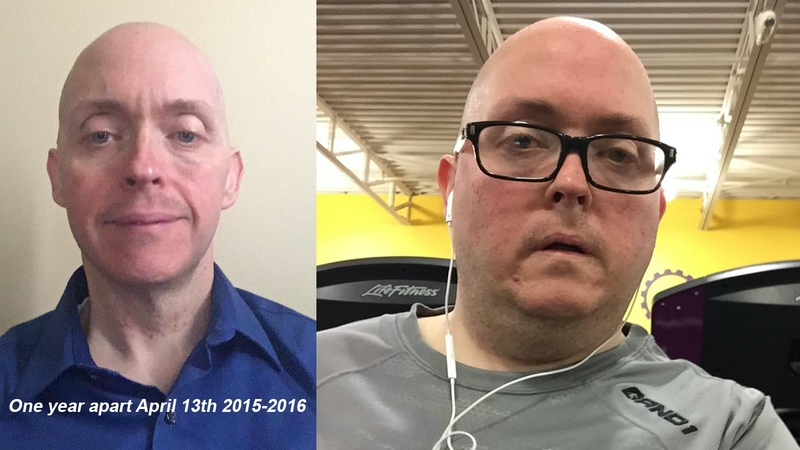 138 lbs Weight Loss Before and After 5 feet 6 Male 289 lbs to 151 lbs