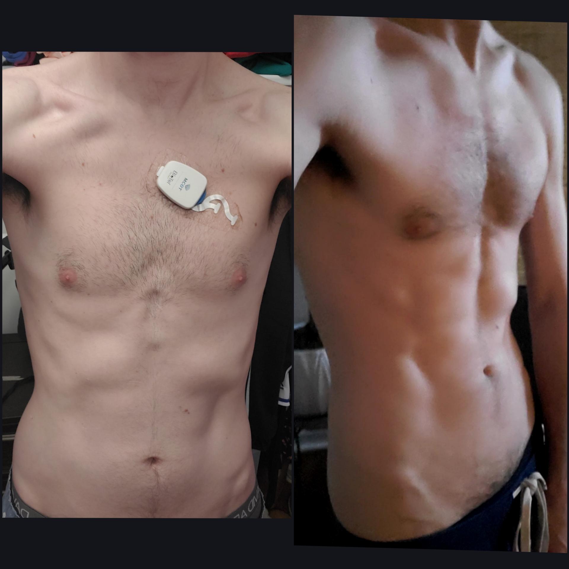 Progress Pics of 14 lbs Muscle Gain 6 foot Male 120 lbs to 134 lbs