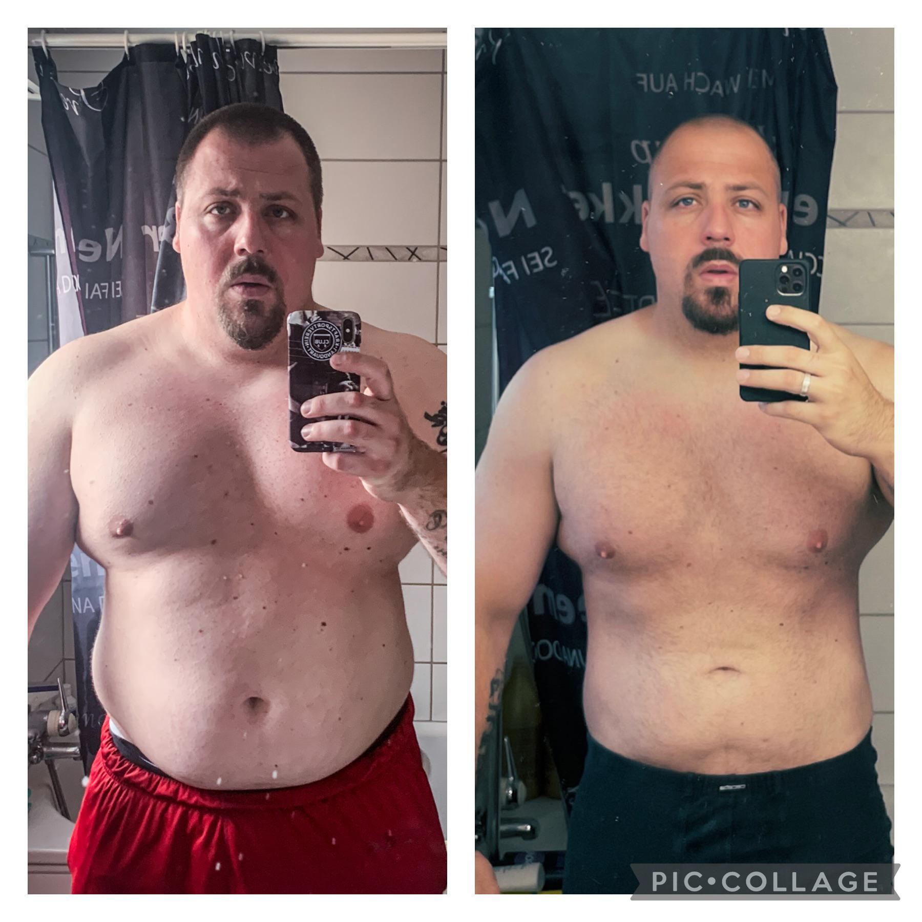 6 feet 1 Male Before and After 70 lbs Weight Loss 332 lbs to 262 lbs