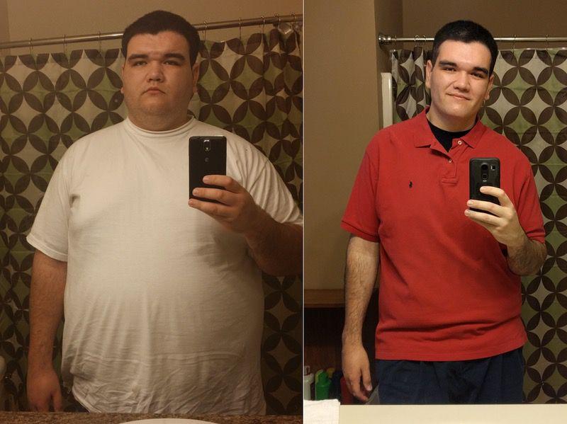 Progress Pics of 172 lbs Weight Loss 6'2 Male 410 lbs to 238 lbs