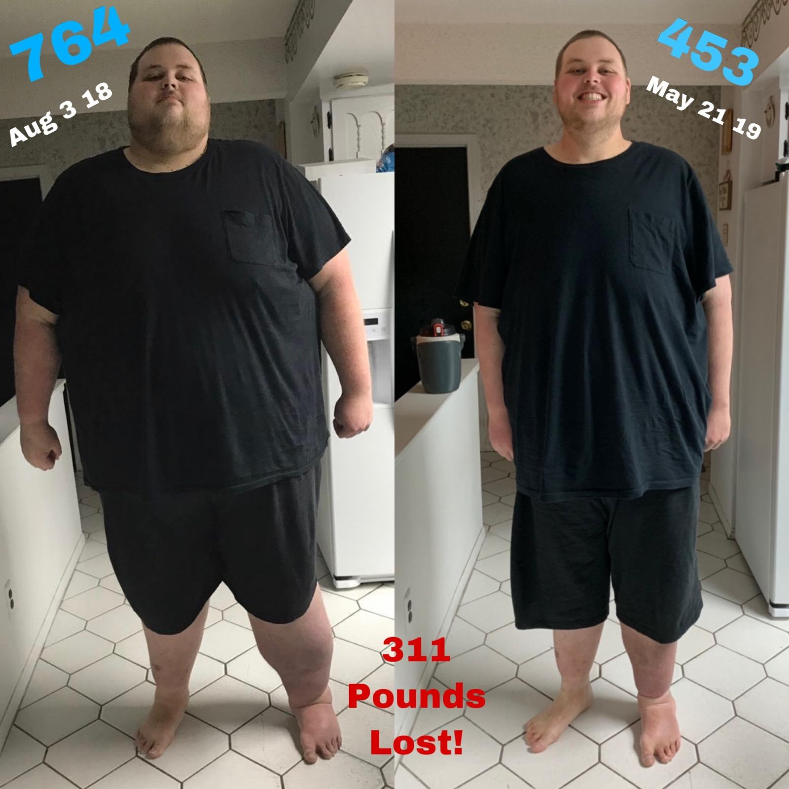 6 feet 8 Male Before and After 311 lbs Fat Loss 764 lbs to 453 lbs