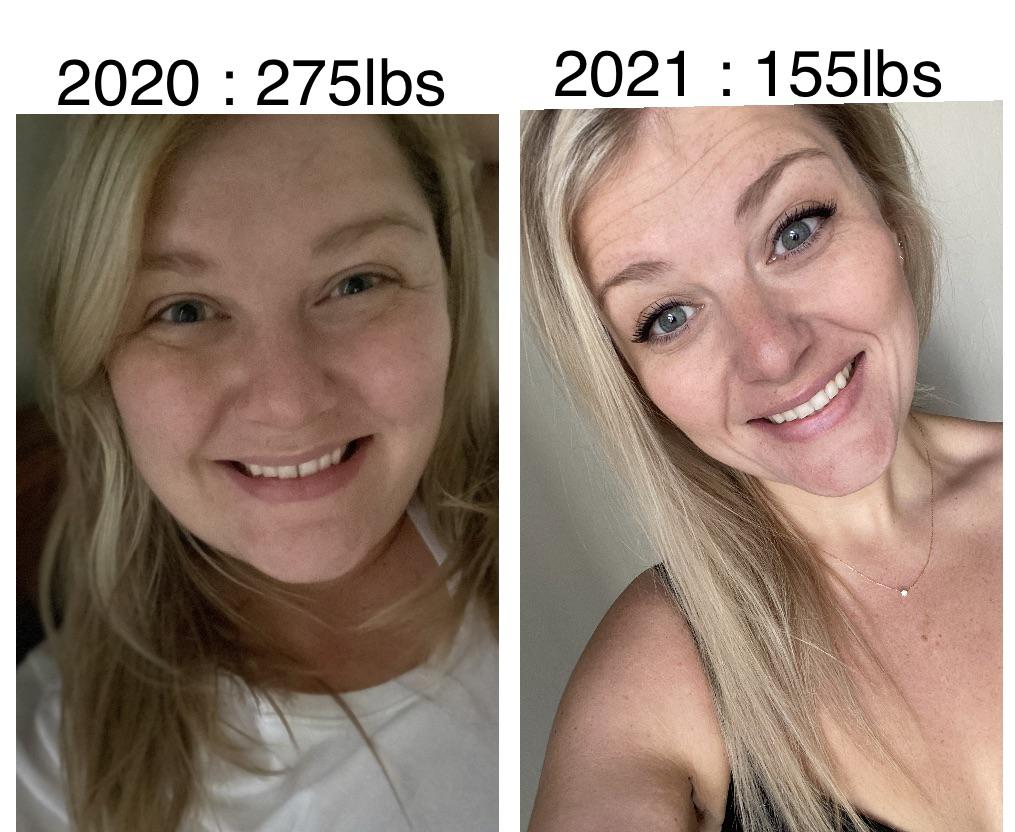 Progress Pics of 120 lbs Weight Loss 5 feet 3 Female 275 lbs to 155 lbs