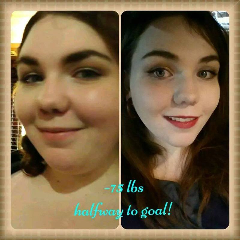 75 lbs Fat Loss Before and After 5 foot 5 Female 315 lbs to 240 lbs