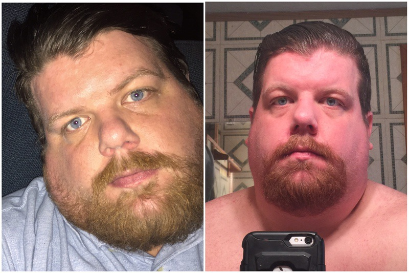 46 lbs Fat Loss Before and After 6 foot 1 Male 443 lbs to 397 lbs
