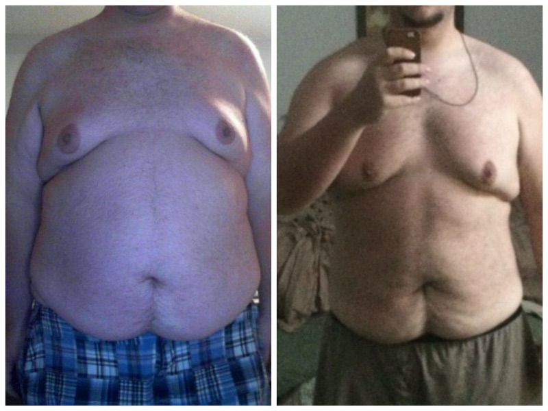 6'4 Male 75 lbs Weight Loss Before and After 410 lbs to 335 lbs