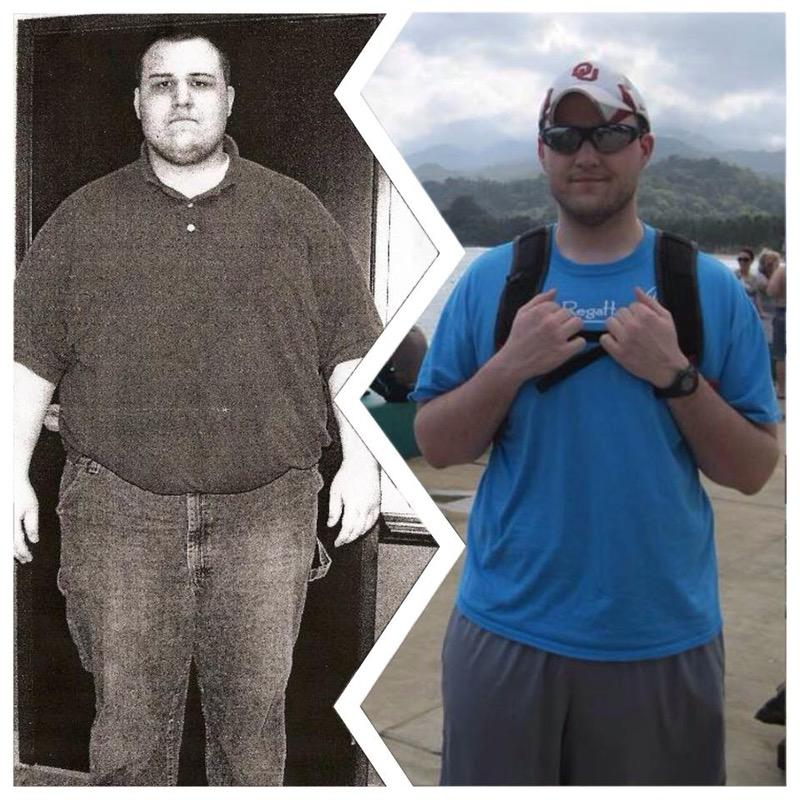 6 foot 3 Male 190 lbs Weight Loss Before and After 450 lbs to 260 lbs