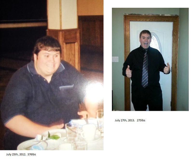 6 foot Male 101 lbs Weight Loss Before and After 376 lbs to 275 lbs
