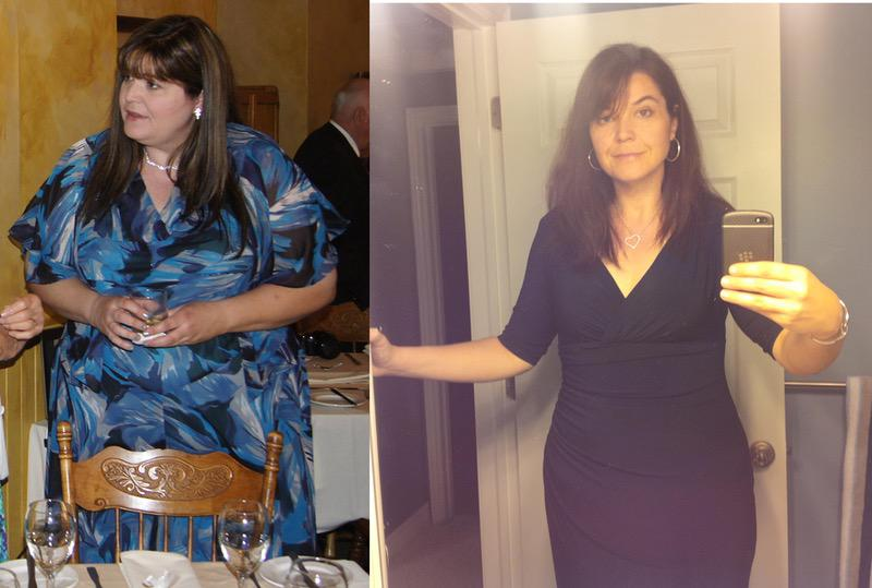 150 lbs Weight Loss Before and After 5'10 Female 320 lbs to 170 lbs