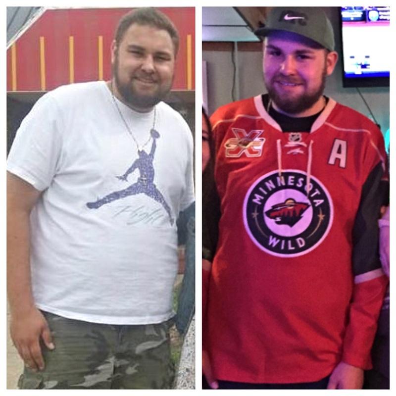 Progress Pics of 93 lbs Fat Loss 6'4 Male 342 lbs to 249 lbs