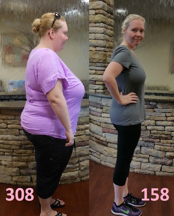 150 lbs Fat Loss Before and After 5 feet 6 Female 308 lbs to 158 lbs