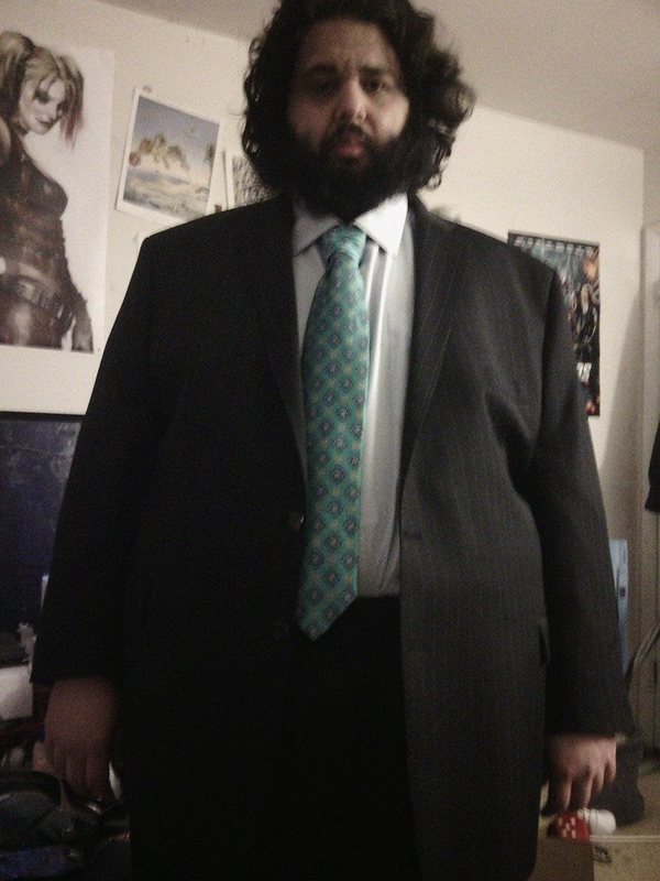 130 lbs Weight Loss Before and After 6 foot Male 375 lbs to 245 lbs