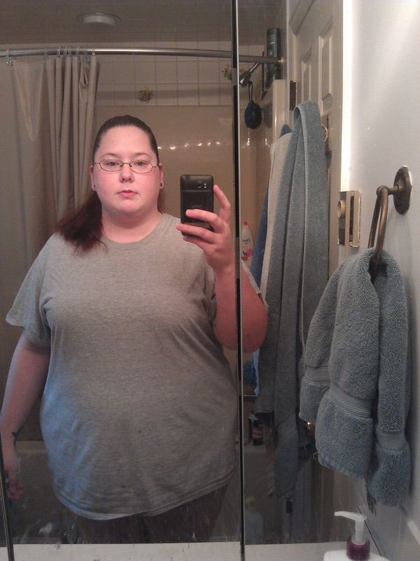 105 lbs Weight Loss Before and After 5 foot 7 Female 315 lbs to 210 lbs