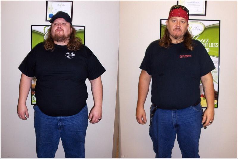 5 feet 11 Male Progress Pics of 101 lbs Fat Loss 362 lbs to 261 lbs