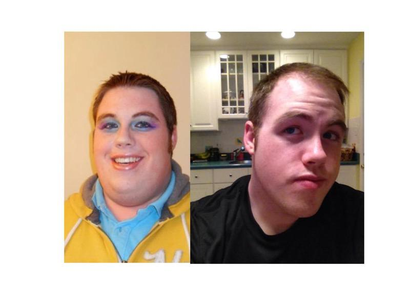 6 feet 5 Male Before and After 130 lbs Weight Loss 416 lbs to 286 lbs