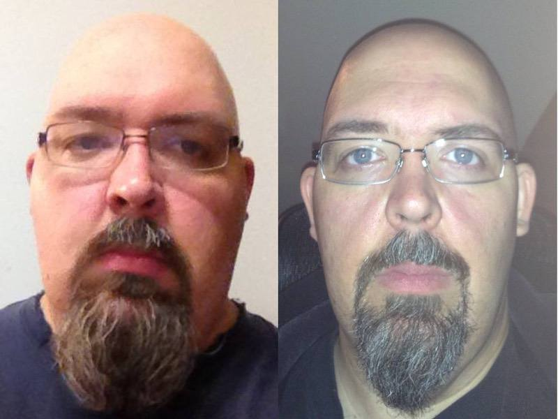 6 foot Male 128 lbs Weight Loss Before and After 432 lbs to 304 lbs
