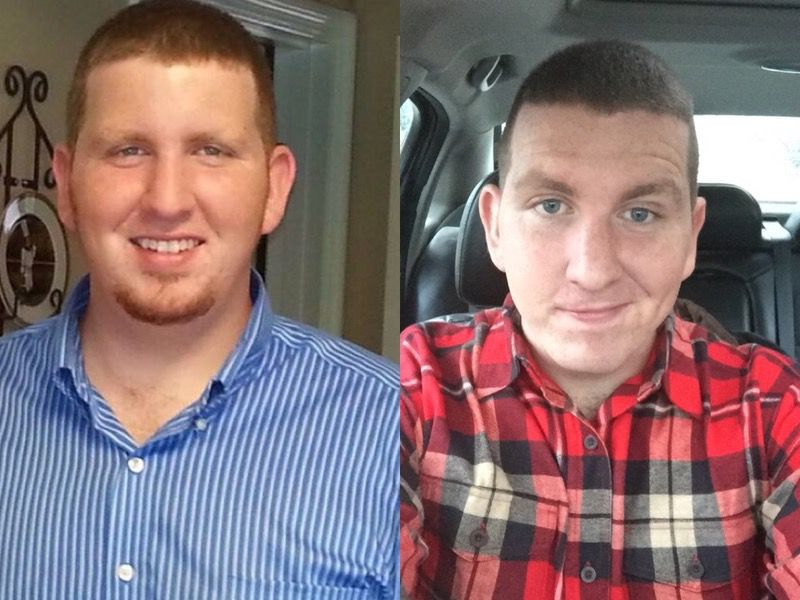 Before and After 65 lbs Fat Loss 5 feet 11 Male 310 lbs to 245 lbs