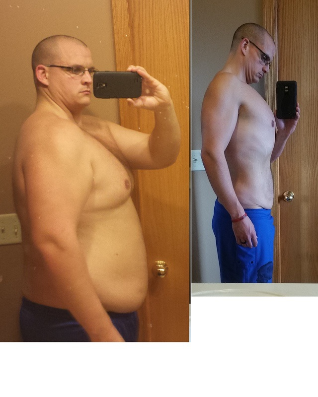 6'1 Male 100 lbs Fat Loss Before and After 318 lbs to 218 lbs