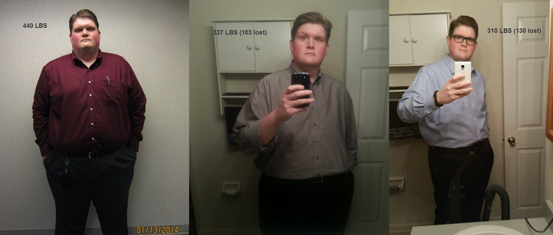 Progress Pics of 130 lbs Weight Loss 6 foot 4 Male 440 lbs to 310 lbs